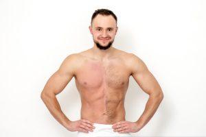 הסרת שיער בשעווה לגברים באזורים אינטימיים